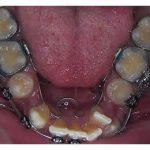 cekimli-ortodonti-tedavisi