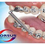 forsus-fonksiyonel-tedavi