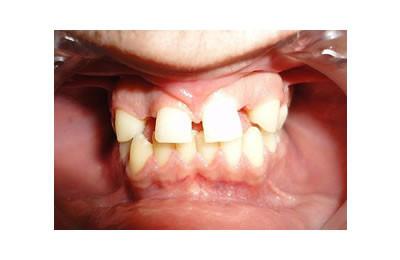 implant-oncesi-ortodonti