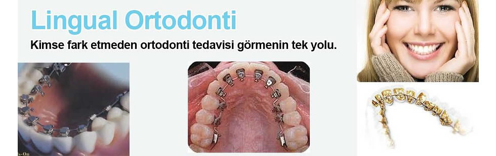 lingual-ortodonti (3)