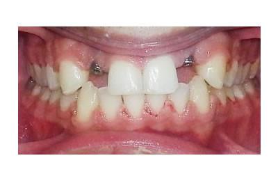ortodonti-sonrasi-implant