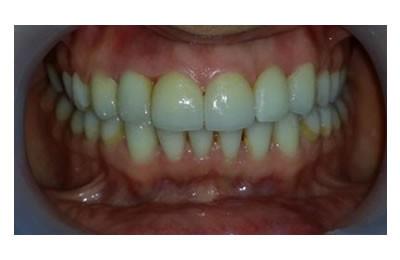 ortodonti-sonrasi-lamina