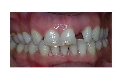 protez-oncesi-ortodonti