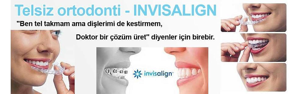 telsiz-ortodonti-invisalign
