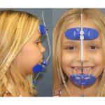 yuz-maskesi-tedavisi