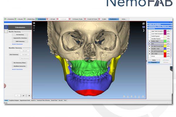 nemo-fab 3D dijital ortognatik cerrahi