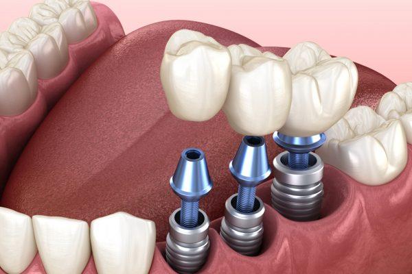 İmplant ve Oral Cerrahi